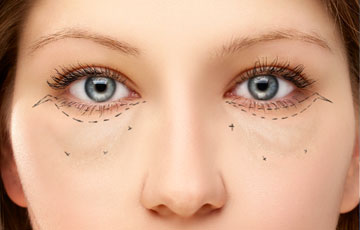>Lower Eyelid Blepharoplasty