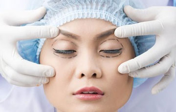 Asian Eyelid Blepharoplasty